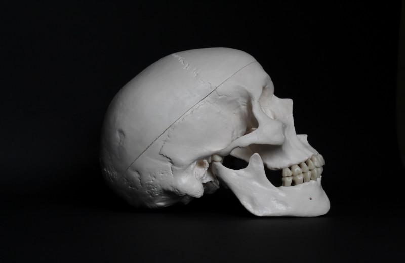 Палеопатологи разобрались в эффективности разных технологий трепанации черепов в Древней Греции