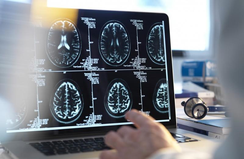 Бесполый разум. Как нейробиология доказала, что не бывает «женского» и «мужского» мозга