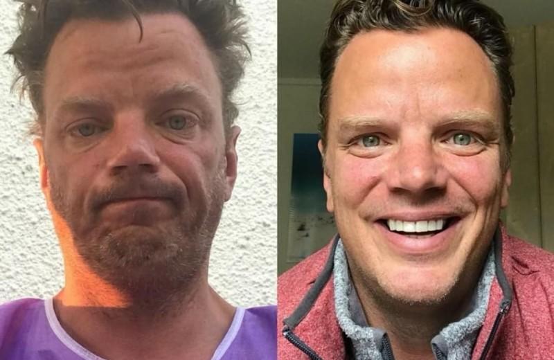 До и после: 16 преображений людей после того, как они бросили пить
