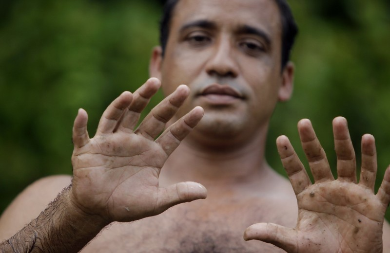 Особенные: 10 необычных аномалий человеческого тела