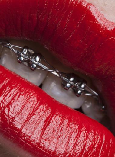 Вызывая улыбку: какие тренды преобладают в косметической стоматологии