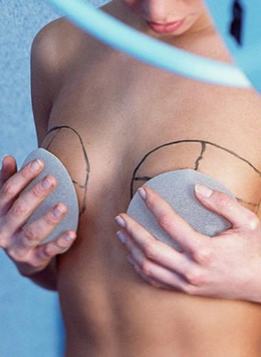 «Я жалею, что не сделала грудь раньше»: личный опыт мамы двоих детей