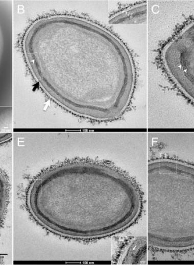 Гигантских вирусов заподозрили в наличии энергетического метаболизма