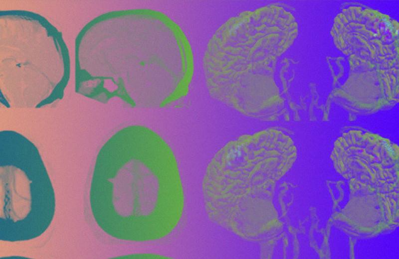 Мозг присоединили к компьютеру через вену