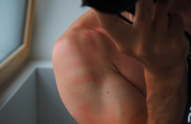 6 вещей, от которых твои солнечные ожоги будут болеть еще сильнее