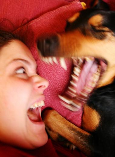 Как защититься от укуса собаки, насекомого, змеи и человека