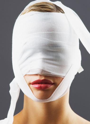 Женщина попросила трех врачей сделать ей модельное лицо: вот что из этого вышло