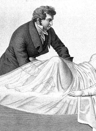 Мясник или гений: эксперименты «отца современной гинекологии»