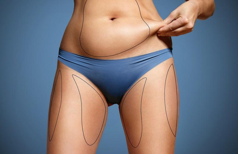 Что происходит с лишней кожей после экстремального похудения — рассказывает врач