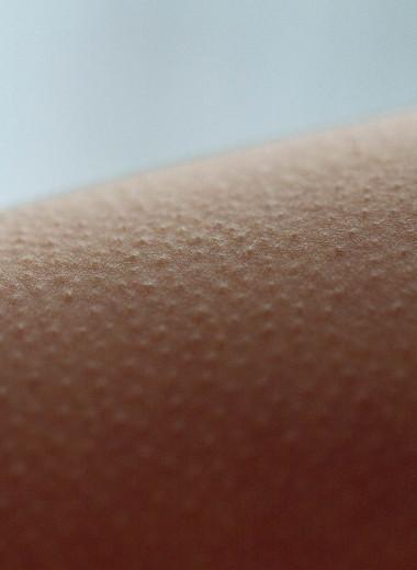 Почему возникает гусиная кожа и как ее лечить