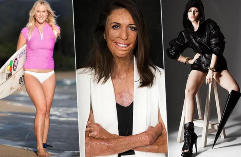 Известные женщины, которые не сдались после травм, катастроф и нападений