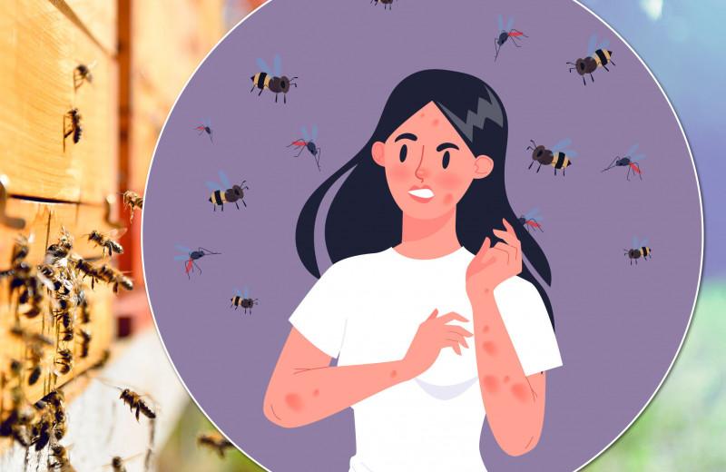 Это были неправильные пчелы: что делать при укусе пчелы
