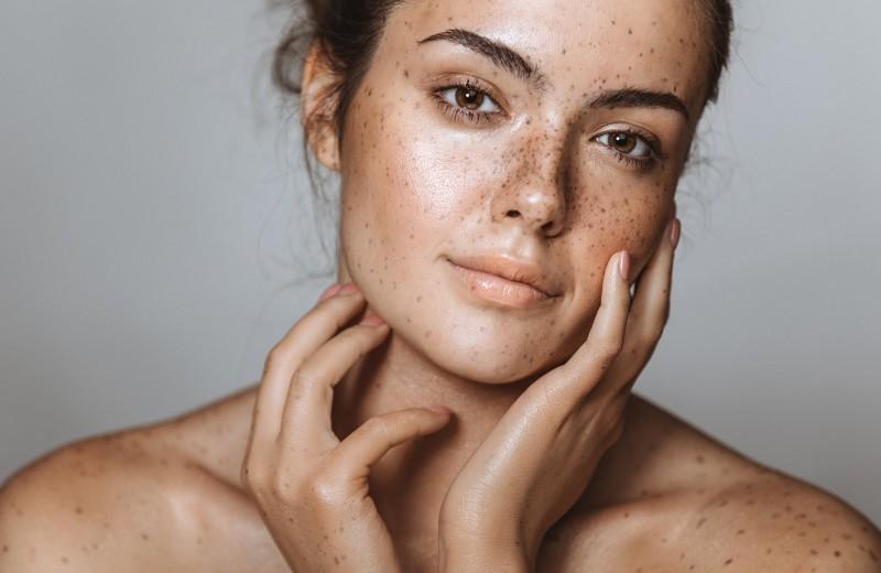 Все, что нужно знать о пигментации кожи: ответы на самые частые вопросы
