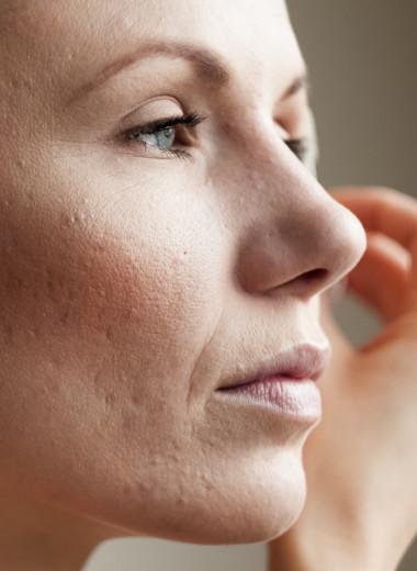 Не давить, дома не лечить: что сегодня нужно знать об акне