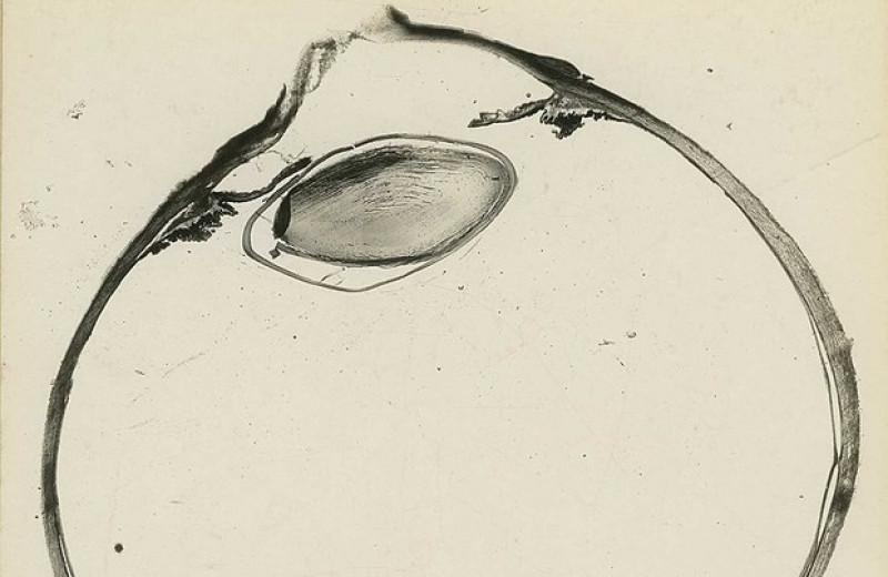 Никотинамид предотвратил метаболические нарушения в нейронах сетчатки крыс с глаукомой