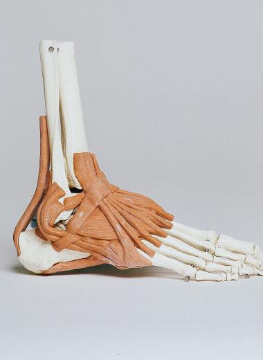 Первая помощь при переломе: что предпринять до приезда врача