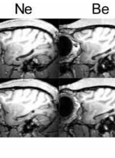 Повреждение гиппокампа не нарушило когнитивные функции макак-резусов