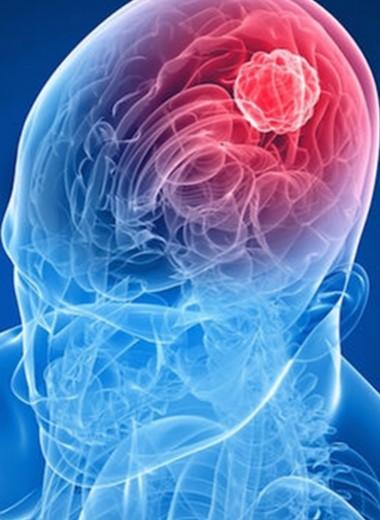 Победа в очередной битве с раком мозга осталась за учеными
