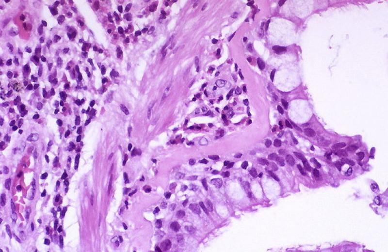 Вакцина от аллергической астмы показала эффективность на мышах