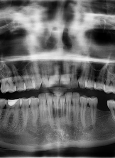 Почему зубы не считаются костью