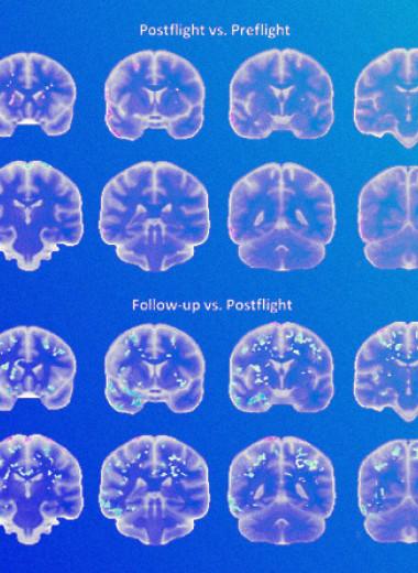 Изменения мозга космонавтов объяснили нейропластичностью