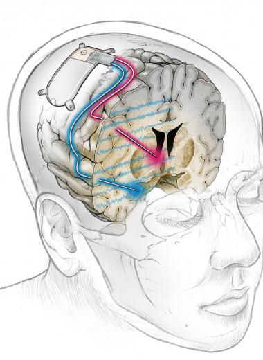 Депрессию впервые удалось успешно вылечить с помощью мозгового имплантата