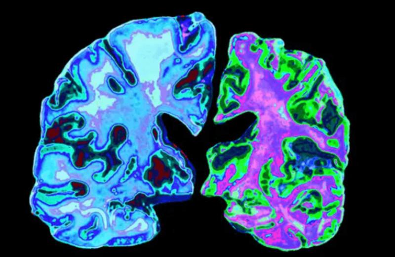 В США впервые за 18лет одобрили препарат против болезни Альцгеймера. Как он устроен и почему его критикуют