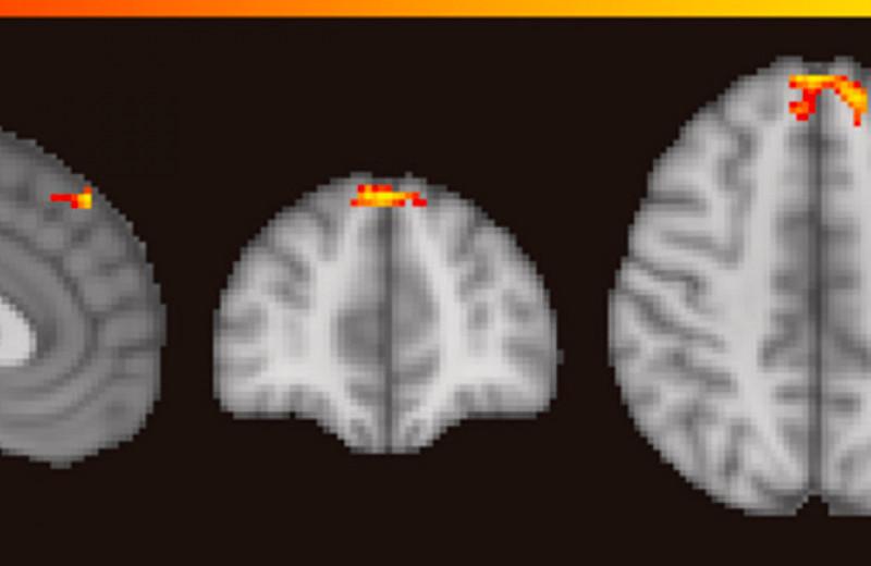 Ученые визуализировали работу мозга при насилии в адрес партнера