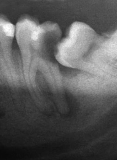 Почему зубы мудрости у людей появляются так поздно: новое исследование