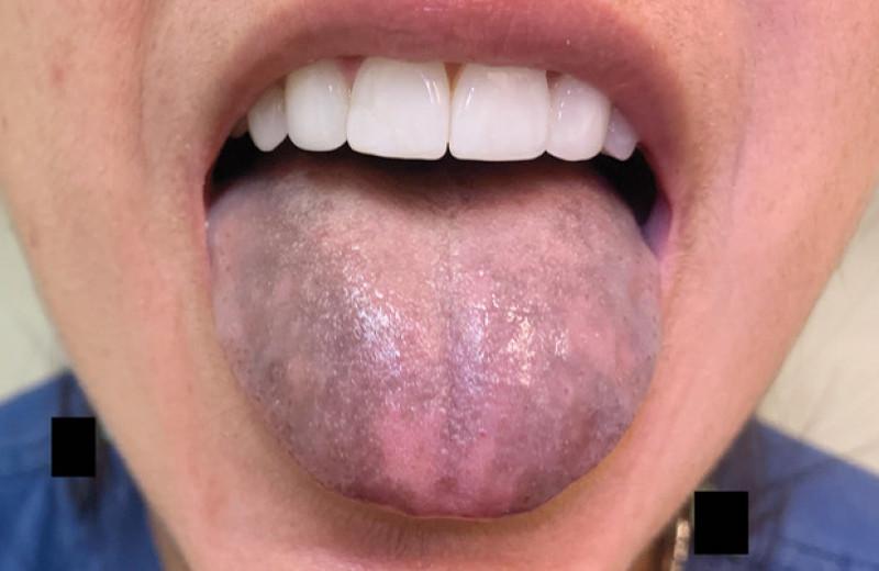 Антитела к ферменту синтеза стероидов привели к посинению языка у американки