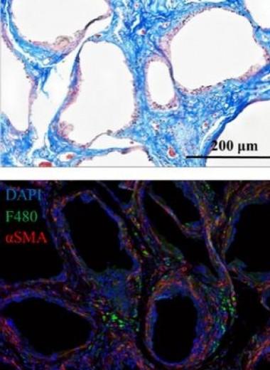 Лекарство от старых клеток примирило иммунитет мышей с силиконовым имплантатом