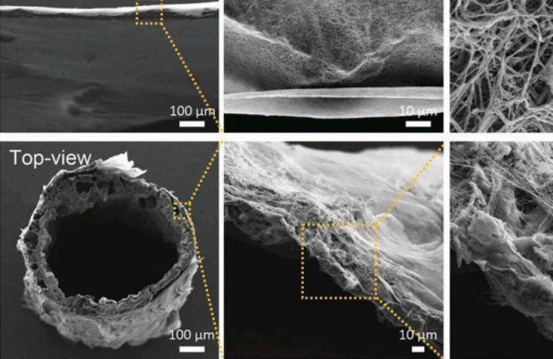 Пористый полимерный каркас позволил мышам эффективней нарастить мышечные клетки