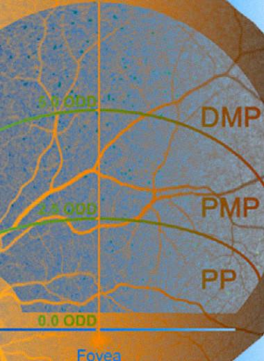 Бета-амилоиды в сетчатке указали на когнитивный дефицит и уменьшение объема гиппокампа