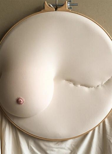 «Чувствую себя раненой, но не побежденной»: рассказ о раке груди от первого лица