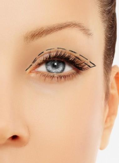 Как ухаживать за кожей вокруг глаз и когда необходима блефаропластика
