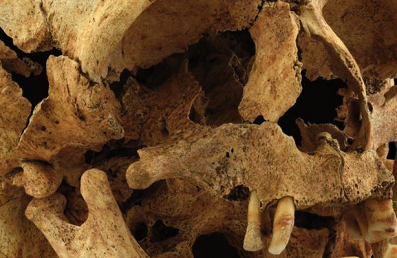 Палеопатологи впервые описали синдром Тричера Коллинза у средневековой женщины