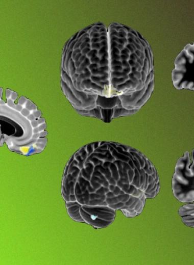 Нарушения мозжечково-корковых путей связали с аутистическим поведением