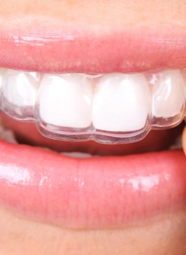 Брекеты в прошлом? Почему теперь модно исправлять зубы элайнерами
