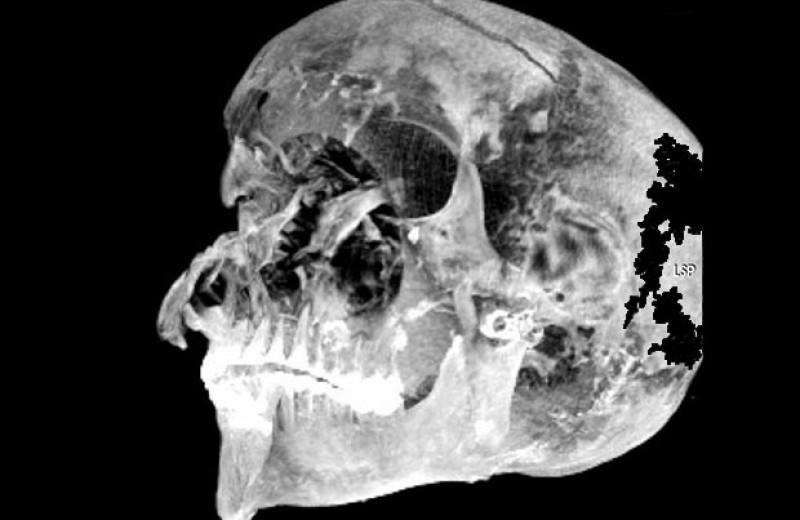 Компьютерная томография подтвердила драматическую гибель египетского царя