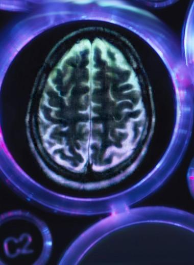 Найдено лекарство от болезни Альцгеймера?