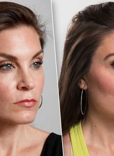 Синдром стервозного лица: как убрать гримасу недовольства с помощью косметолога