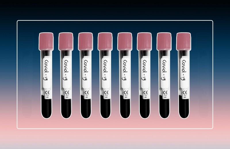 Как провериться на коронавирус: 5 вопросов про тесты и диагностику заболевания