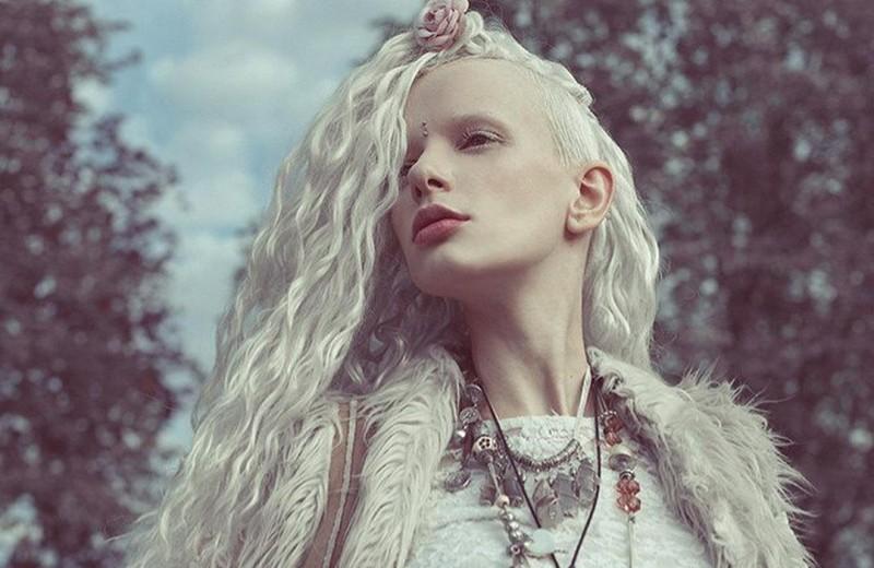 Девушка-альбинос из шоу «Холостяк» — о борьбе с раком: «Боялась жить уродом»