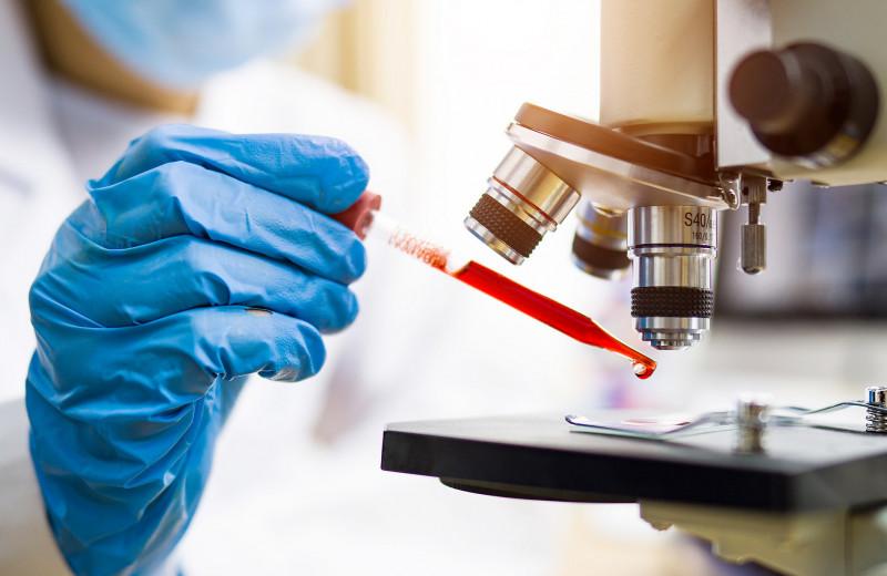 Это ловушка: анализы на онкомаркеры часто бесполезны и даже опасны
