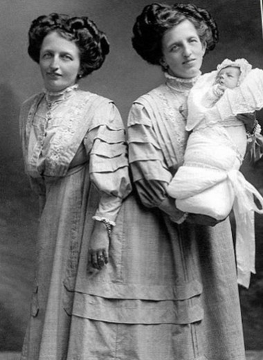 Вместе навсегда: сиамские близнецы, у которых все в жизни сложилось хорошо