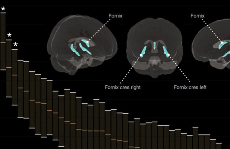 Одиночество разглядели в сети пассивного режима работы мозга