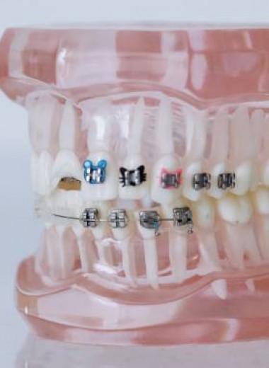 Прикус действительно влияет на здоровье зубов и осанку?