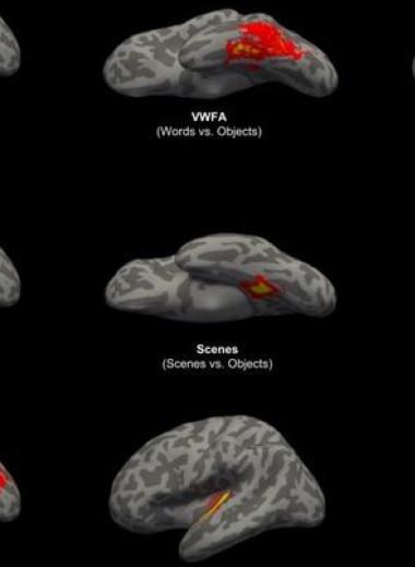 Мозг человека оказался с рождения предрасположен к зрительному восприятию букв и слов