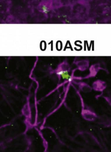 Стволовые клетки указали на маркеры аутизма еще во время эмбрионального развития