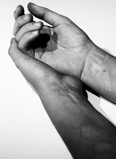 Что такое селфхарм и как справиться с желанием навредить себе